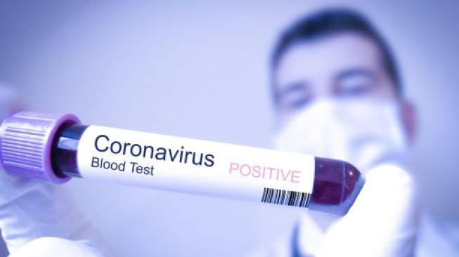 definisi dan pengertian apa itu virus corona 2019-ncov beserta gejala dan cara mencegahnya